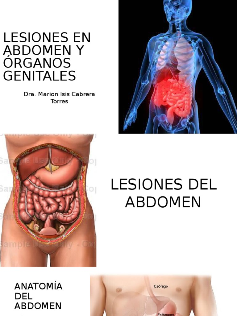 Lesiones Abdominales Tum i