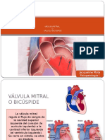 INSUFICIENCIA-MITRAL.pptx