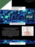 MONONUCLEOSIS-INFECCIOSA (1).pptx
