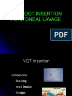 NGT Peritoneal Lavage