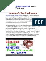 Gallbladder Stones in Hindi