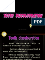 Tooth Discolour at Ion Pedo