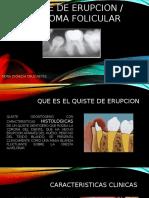 QUISTE DE ERUPCON.pptx