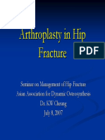 5 Arthroplasty Hip Fracture