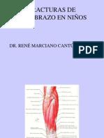 FracturasdeAntebrazoenNinos.pdf