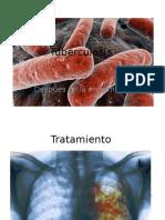 Tuberculosis Despues