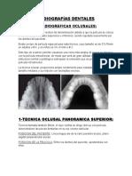 Tipos de Radiografías Dentales