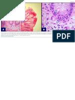 GVHD Colon Fig 1