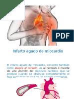 infartodelmiocardio.pptx