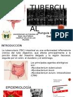 Tuberculosis Intestinal