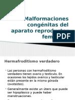 Malformaciones Congénitas Del Aparato Reproductor Femenino