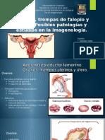 utero, trompas y ovarios.pptx