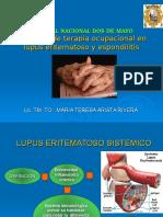 Lupus y Espondilitis
