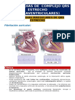 Taquicardias de Complejo QRS Estrecho - Irregulares