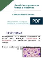 2_alterações Do Hemog Anemias e Leucemias