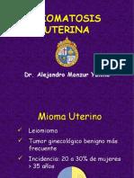 Miomatosis.ppt