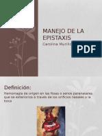 expo epistaxis.pptx