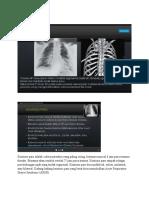 Kontusio paru adalah cedera parenkim yang paling sering.docx
