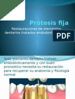 Prótesis fija.pptx