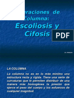 escoliosis - cifosis