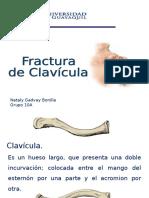 Fx de Clavicula