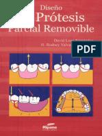 Diseño de pròtesis parcial removible