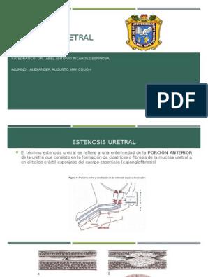 estenosis uretral pdf 2020