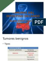 Neoplasias de Intestino Delgado y Tuberculosis Intestinal