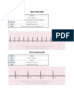 Ekg Strip Notes