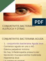2. Conjuntivitis Bacteriana, Alérgica y Otras (ALE)