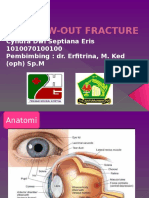 Blow Out Fracture