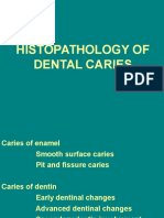 12-histopathology of dental caries.ppt