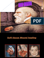 wound healing.ppt