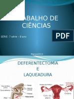 Trabalho de Ciências Deferentectomia e Laqueadura