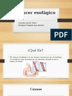 Cáncer esofágico.pptx