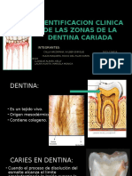 1deagosto Operatoria Dental, Caries en Dentina