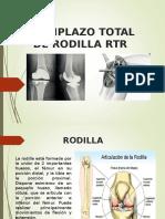 Reemplazo Total de Rodilla Rtr