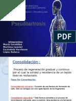 pseudoartrosis seminario123