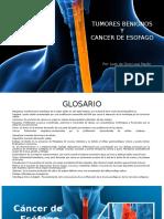 9. Cancer de Esofago