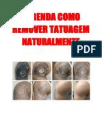 Aprenda Como Remover Tatuagem Naturalmente
