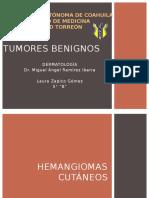 TUMORES BENIGNOS