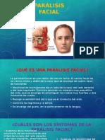 Parálisis facial.pptx