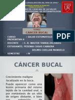 Cancer Bucal