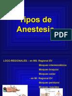 Tipos de Anestesia