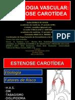 24346783 Tratamento En Do Vascular Da Doenca Carotidea