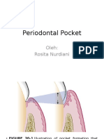 Periodontal Pocket.pptx