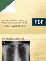 torax patologico upao.pptx