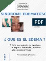 sindrome edematoso