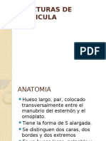 3.Fracturas clavicula.pptx