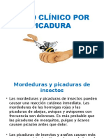 CASO CLÍNICO POR PICADURA.pptx